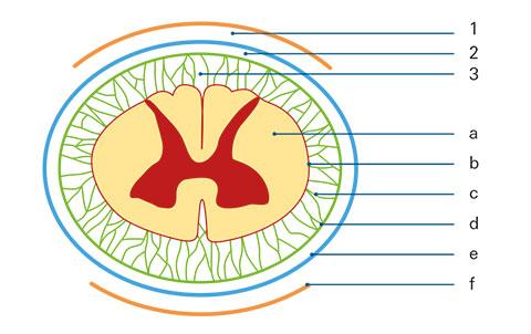 Rückenmarksnahe Regionalanästhesie - Spinale, PDK und CSE: Worauf zu ...